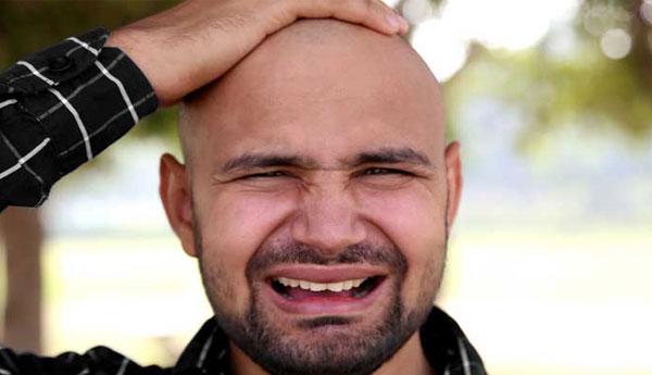 baldness-art-img11.jpg