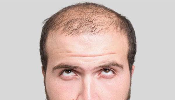 hairloss-art-img12.jpg